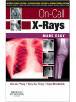 On-Call X-Rays Made Easy, International Edition:  1ed